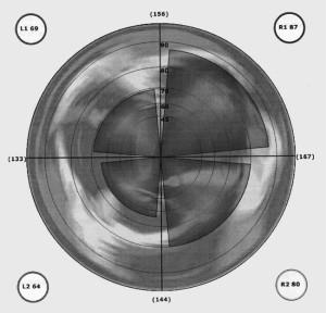 Brain Profile - 4 Quadrants